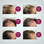 Viviscal Gorgeous Growth Elixir 50ml - eliksir za bujniju u gušću kosu za žene - Perut, Gubitak kose i Masnoća