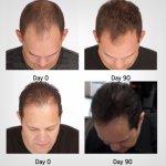 Viviscal Man Full Force shampoo 250ml - šampon za muškarce - Perut, Gubitak kose i Masnoća